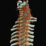 Human Cadaver Dissection Showing the Arteries of the Vertebral Column Photographic Print by L. Bassett