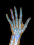 X-Ray of a Human 12 Year Old Hand and Wrist Photographic Print by Barry Slaven