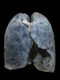 A Smoker's Damaged Lungs Photographic Print by Ralph Hutchings