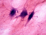Multipolar Neurons Showing Dendrites, Cell Bodies, and Axons Photographic Print