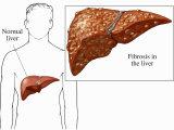 ulcerative colitis and colon cancer symptoms