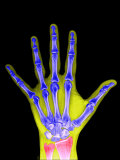 X-Ray of a Human Adult Hand Photographic Print by Barry Slaven