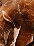 The Surface of Human Skin Epidermis Photographic Print by David Phillips