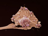 Breast Cancer, Electron Microscopy Unit, Cancer Research, UK Photographic Print by Anne Weston