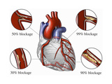 Medical Illustration of the Human Heart Showing Various Degrees of Coronary Artery Disease Photographic Print