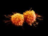 Cancer Cells Dividing Photographic Print by David Phillips