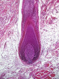 Human Hair Follicle, Vertical Section Showing Root of Hair. H&E Stain Photographic Print by Gladden Willis