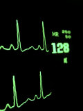 Medical Monitor Displaying Pulse and Heart Rate Data During Surgery Photographic Print by Greg Dale