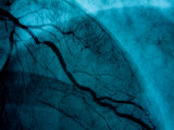 Images of Coronary Arteries on a Screen at a Cardiac Lab Photographic Print by Todd Gipstein
