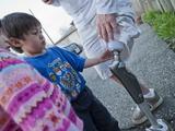 Children Explore the C-Leg Artificial Limb Technology Photographic Print by Greg Dale