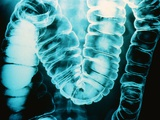 Radiograph of Intestine Photographic Print by Howard Sochurek