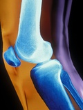 Normal Human Knee Joint and Patella Photographic Print