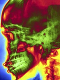 X-ray of Skull With Jaw Wiring Photographic Print by  Mediscan