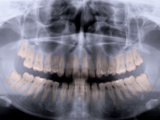 Panoramic X-Ray of Mouth Photographic Print
