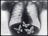 X-ray of butterflies in the stomach Photographic Print by Thom Lang