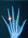 X-ray of hand with diamond ring Photographie par Thom Lang