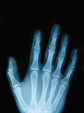 X-Ray of a Hand Photographic Print by Robert Llewellyn