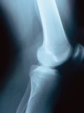 Knee Joint X-Ray Photographic Print by Robert Llewellyn