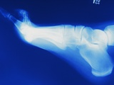 X-Ray of Person&#39;s Foot Photographic Print by ER Productions