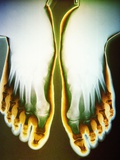 X-ray of Feet Photographic Print