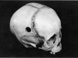 Trepanning: Skull Photographic Print