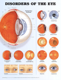 Disorders of the Eye 2nd Edition Anatomical Chart Poster Print Print