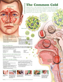 Understanding the Common Cold Anatomical Chart 2nd Edition Poster Print Poster