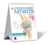 Understanding Arthritis Educational Medical Flip Chart Art