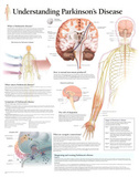 Understanding Parkinson's Disease Educational Chart Poster Print