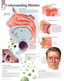 Understanding Rhinitis Educational Chart Poster Posters