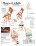 Laminated Rheumatoid Arthritis Educational Chart Poster Prints