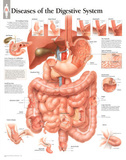 Diseases of Digestive System Educational Chart Poster Posters