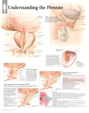 Laminated Understanding the Prostate Educational Chart Poster Prints