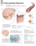Laminated Understanding Migraines Educational Chart Poster Posters