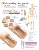 Laminated Understanding Osteoporosis Educational Chart Poster Posters