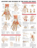 Anatomy and Injuries of the Hand and Wrist Anatomical Chart Poster Print Prints