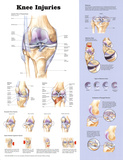 Knee Injuries Anatomical Chart Poster Print Reprodukcje