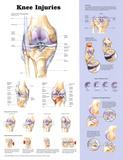 Knee Injuries Anatomical Chart Poster Print - Reprodüksiyon