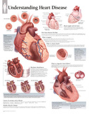 Laminated Understanding Heart Disease Educational Chart Poster Photo