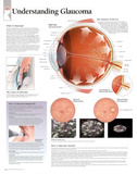 Laminated Understanding Glaucoma Educational Eye Disease Poster Posters