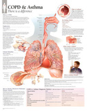 Laminated COPD/Asthma Educational Chart Poster Posters