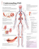 Understanding PAD Educational Disease Chart Poster Posters