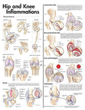 Hip and Knee Inflammations Anatomical Chart 2nd Edition Poster Print Print