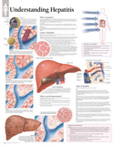 Laminated Understanding Hepatitis Educational Chart Poster Affiches