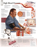 Laminated High Blood Pressure Educational Chart Poster Affiches