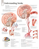 Laminated Understanding Stroke Educational Chart Poster Affiches