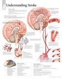 Laminated Understanding Stroke Educational Chart Poster Kunstdrucke