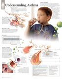 Laminated Understanding Asthma Educational Chart Poster Affiches