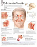 Laminated Understanding Sinusitis Educational Chart Poster Prints