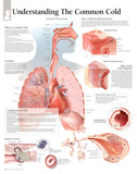 Laminated The Common Cold Educational Chart Poster Print